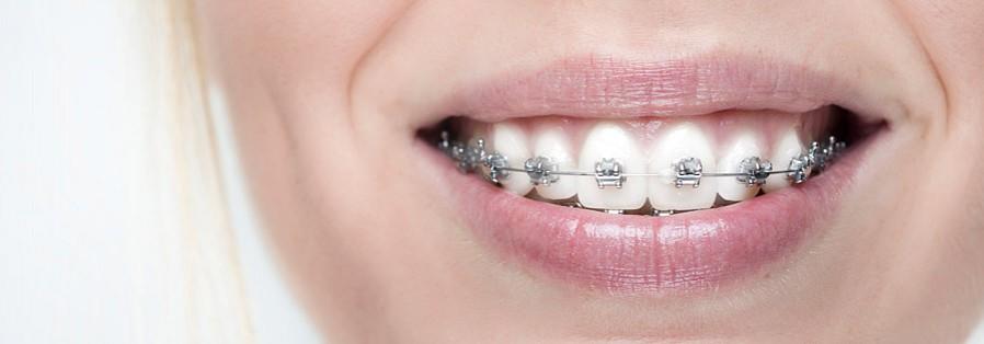 Festsitzende Zahnspangen (Brackets) außen