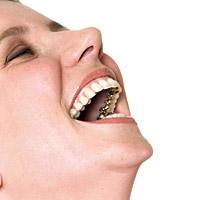 Die Incognito Zahnspange
